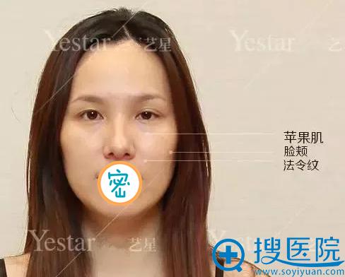 面部脂肪填充重点区域