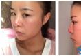 膨体隆鼻失败后找上海长征医院刘安堂做了自体肋软骨隆鼻修复