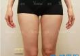 西安艺星大腿吸脂解决局部肥胖 脂肪提纯后填充面部不做黄脸婆