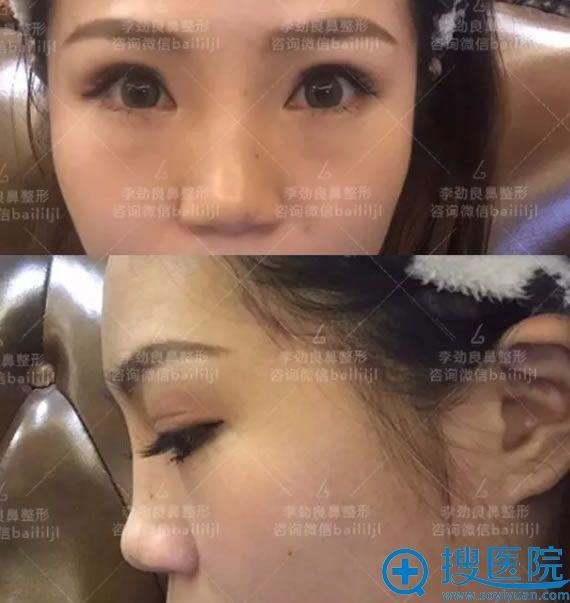 注射玻尿酸隆鼻导致鼻子扁平