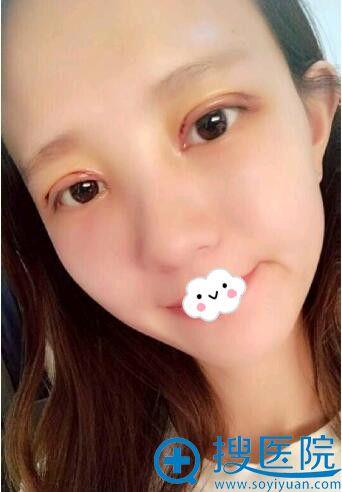 扬州雷岳崇双眼皮+开眼角案例