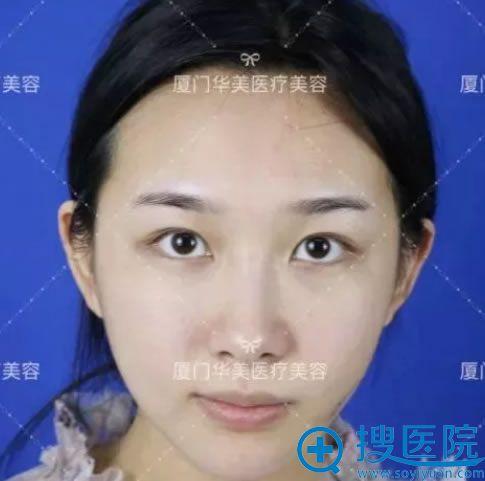 在华美做双眼皮手术前的内双照片