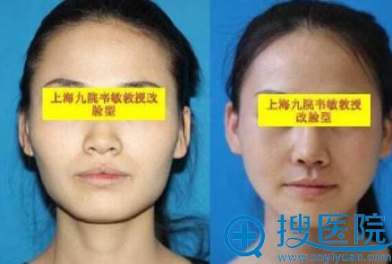 上海九院韦敏教授磨骨案例