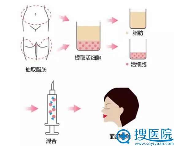 天津美莱医学美容自体脂肪面部填充过程