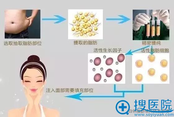天津美莱医学美容自体脂肪填充技术原理