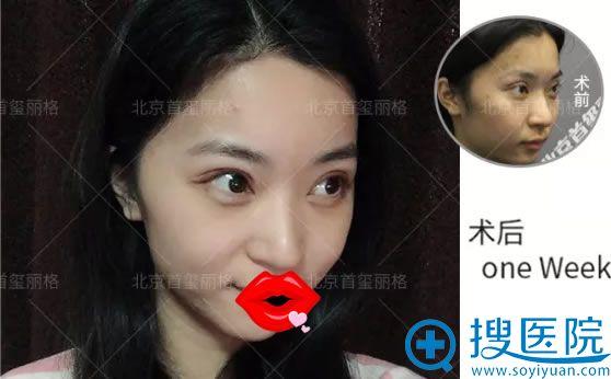 北京韩胜双眼皮修复案例一周图