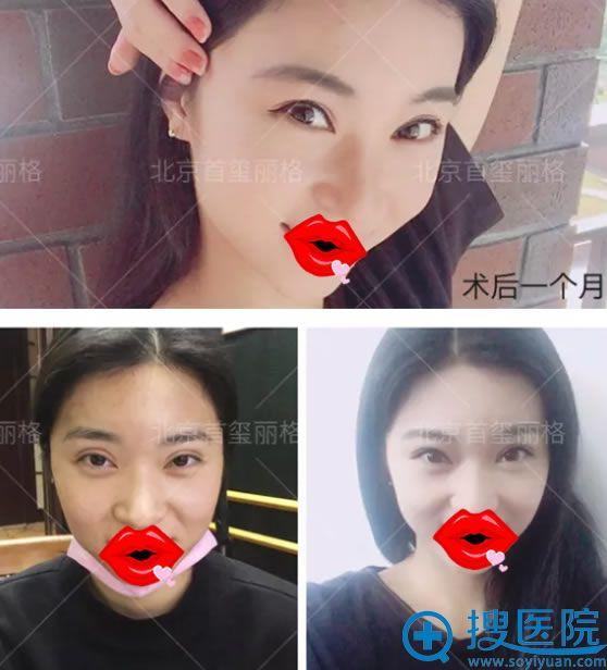 北京韩胜双眼皮修复案例1个月效果