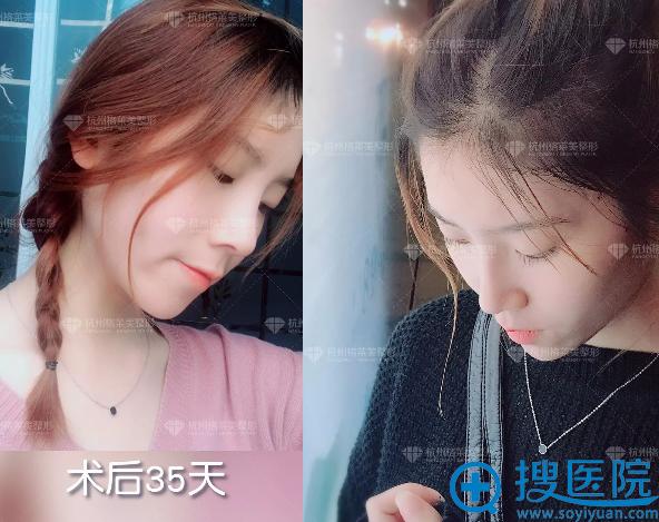 杭州格莱美隆鼻案例一个月图片
