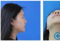 在郑州欧兰做了达拉斯鼻综合隆鼻才知道孟庆鹏做鼻子名不虚传