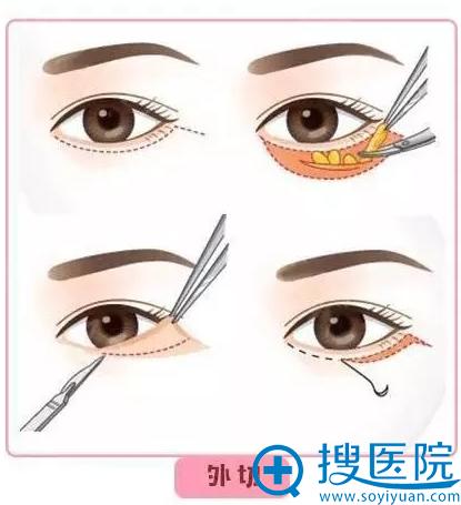 郑州东方整形美容医院外切法祛眼袋示意图
