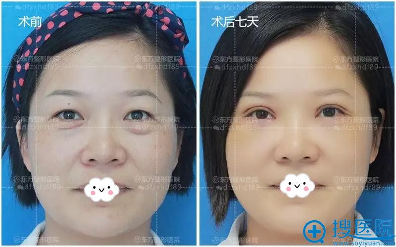 郑州东方整形美容医院双眼皮+祛眼袋术后7天对比