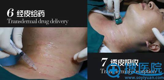 男士注射祛颈纹的过程