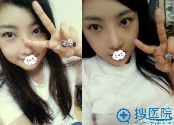 韩国巴诺巴奇整形外科医院双眼皮+瘦脸术后效果