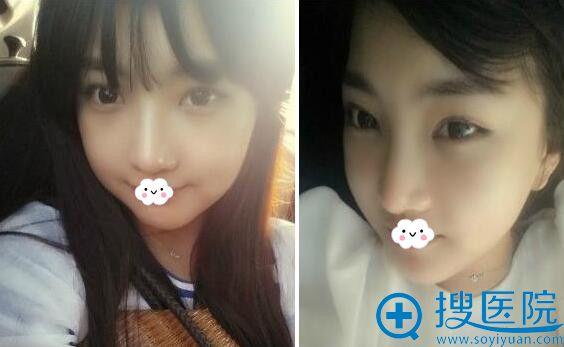 韩国巴诺巴奇整形外科医院填充额头案例