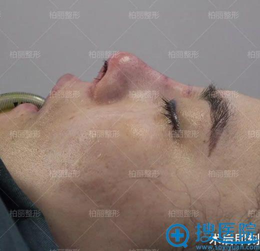 李劲良高难鼻修复手术即刻效果