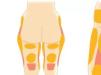 韩国巴诺巴奇腹部/大腿吸脂手术价格6折 夏季优惠活动开启