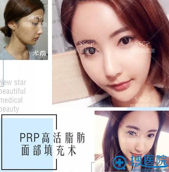 新星靓张阳PRP高活脂肪面部填充案例