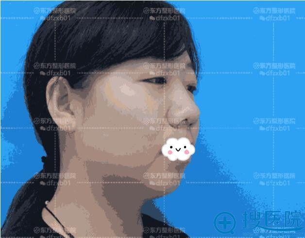 郑州东方整形假体丰下巴+双眼皮术前
