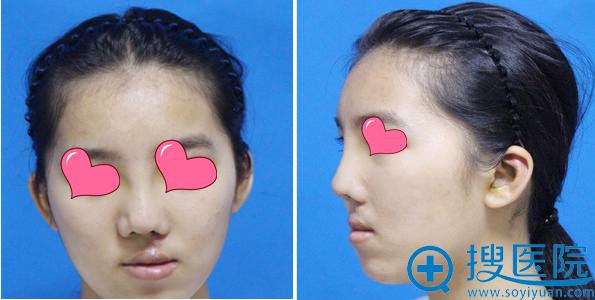 唇裂修复+鼻畸形矫正拆线后效果