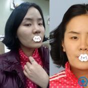 之前做的假体隆鼻失败成歪鼻 到韩国巴诺巴奇修复美的不留痕迹