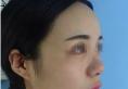 我看闺蜜在贵阳丽都做的隆鼻效果还不错于是我也来做了个鼻综合