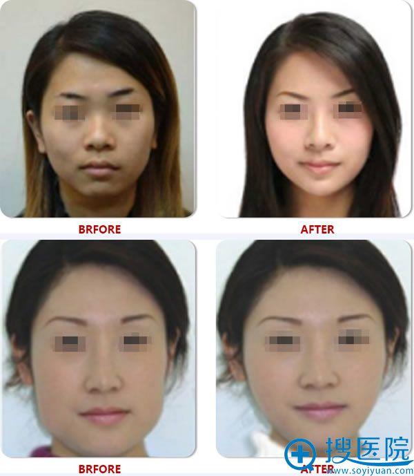 杭州整形医院鼻综合整形案例