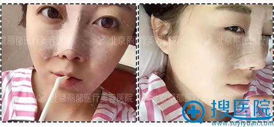 北京丽都鼻综合手术后1天照片