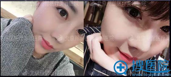 北京丽都找闵英俊做鼻综合术后65天照片