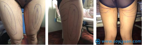 赵善军为我设计了大腿处需要抽脂的位置