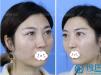 杭州时光给90后小姐姐做了内切祛眼袋手术 自拍再也不用P图了