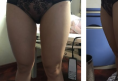 求助!帮我看下成都赵善军博士给我做的大腿吸脂的效果怎么样?