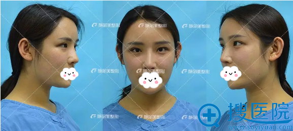 李彤彤面部脂肪填充术后半个月照片