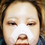 是时候展示恢复效果了 韩国巴诺巴奇轮廓三件套+眼鼻整形7个月