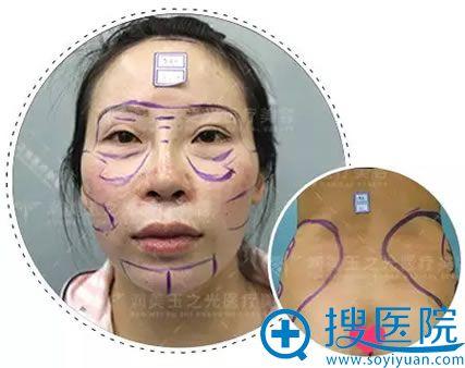 王明利博士为我设计的手术方案