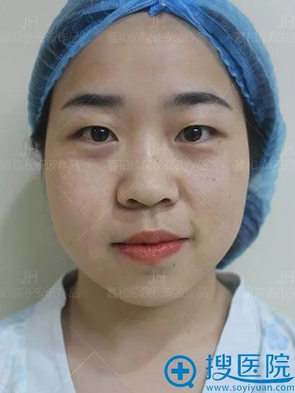 做双眼皮手术前的照片