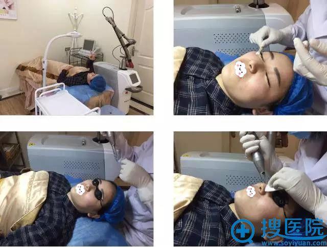 重庆万州激光祛斑过程