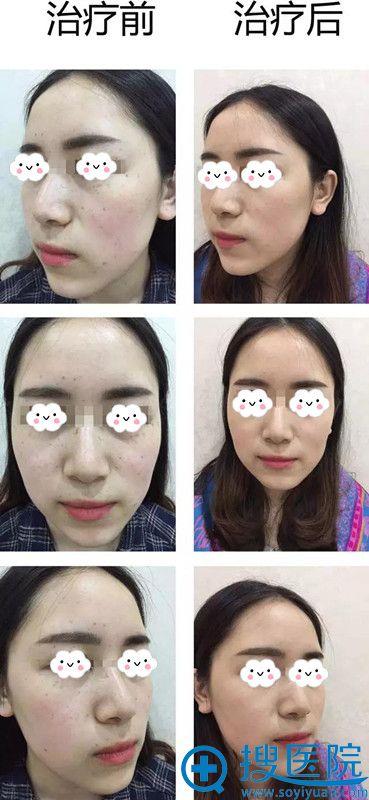 重庆万州激光祛斑真人案例效果对比