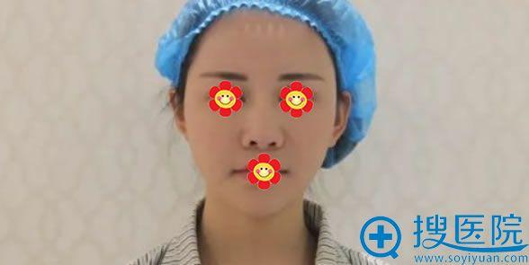 硅胶隆鼻手术失败的照片