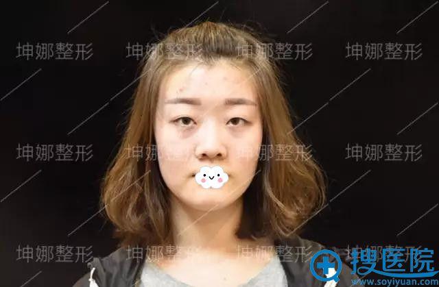 坤娜整形医院杜兰余双眼皮+隆鼻案例