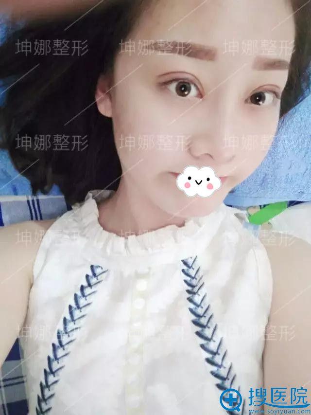 潍坊坤娜医疗美容医院双眼皮案例