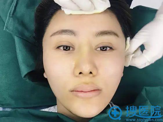 北京叶美人刘叶体验线雕手术即刻效果
