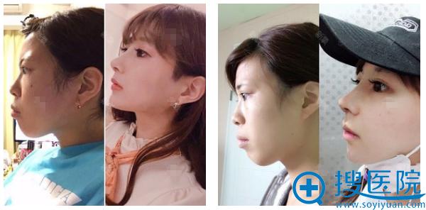 找上海九院袁捷做改脸型四个月对比图