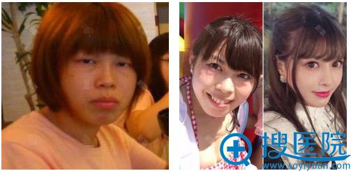 来上海九院改脸型前的照片