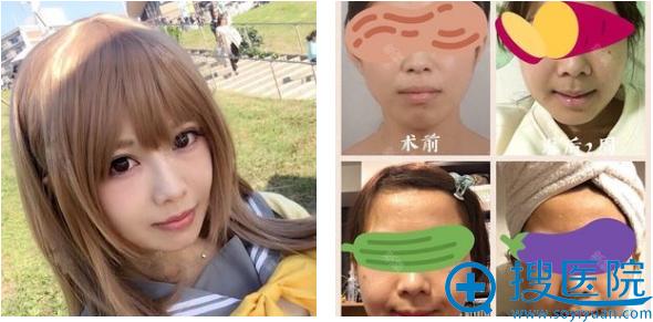 上海九院袁捷改脸型和突嘴矫正术后两个月案例图
