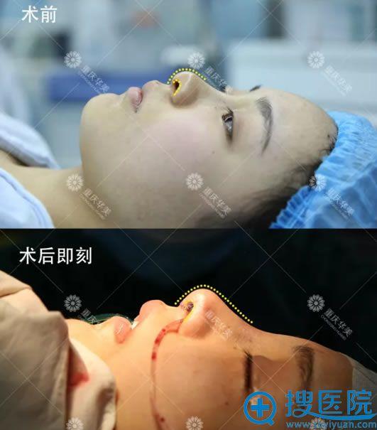 耳软骨和膨体综合隆鼻术后即刻对比图