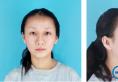 从一组肋软骨隆鼻案例来看贵阳华美鼻教父田永华医生做鼻子好吗