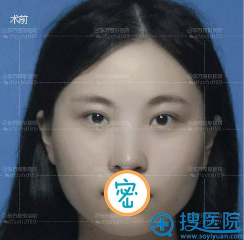 郑州东方玻尿酸隆下巴术前正面照