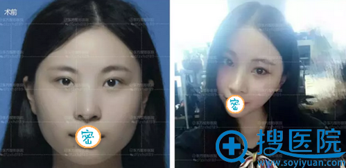 郑州东方玻尿酸隆下巴术前术后对比