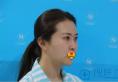 不满意玻尿酸隆鼻效果 她找青岛华颜美李爱群做了鼻综合手术