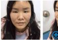 姐姐鼻子超美是因为她找苏州芘丽芙华美黄旭医生做了鼻综合隆鼻